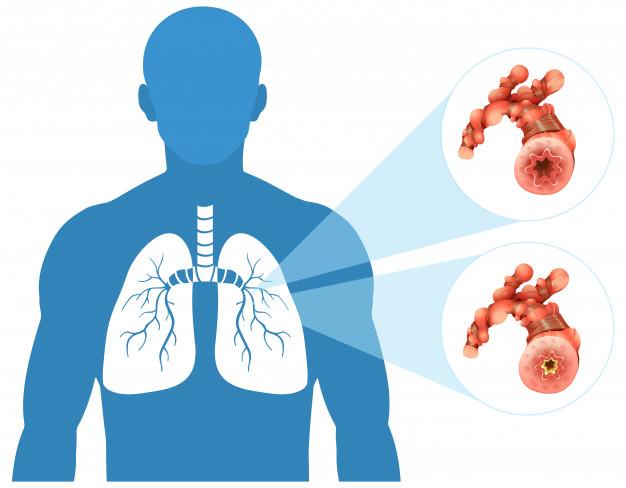 D'après une nouvelle étude parue dans l'European Respiratory Journal, le tissu adipeux qui s'accumule dans les parois respiratoires des personnes obèses pourrait expliquer leurs problèmes d'asthme.