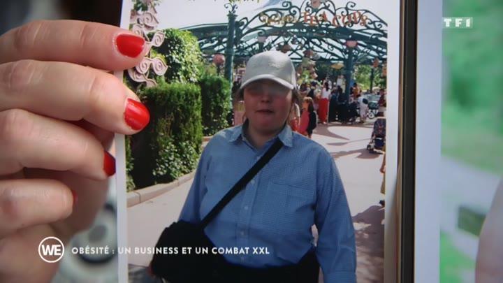 """Pour la Ligue contre l'obésité (LCO), le reportage """"Obésité : un business et un combat XXL"""" diffusé samedi 12 octobre sur TF1 ridiculise les personnes souffrant de la maladie obésité."""