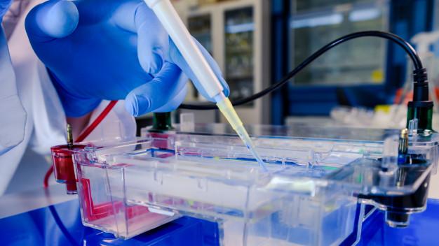 Selon des chercheurs basés à Karlsruhe et Dallas, les cellules adipeuses produisent de grandes quantités d'une protéine que le Covid-19 utiliserait pour infiltrer les cellules humaines. « Une porte d'entrée » qui expliquerait pourquoi les personnes obèses peuvent être plus à risque de mourir du coronavirus.