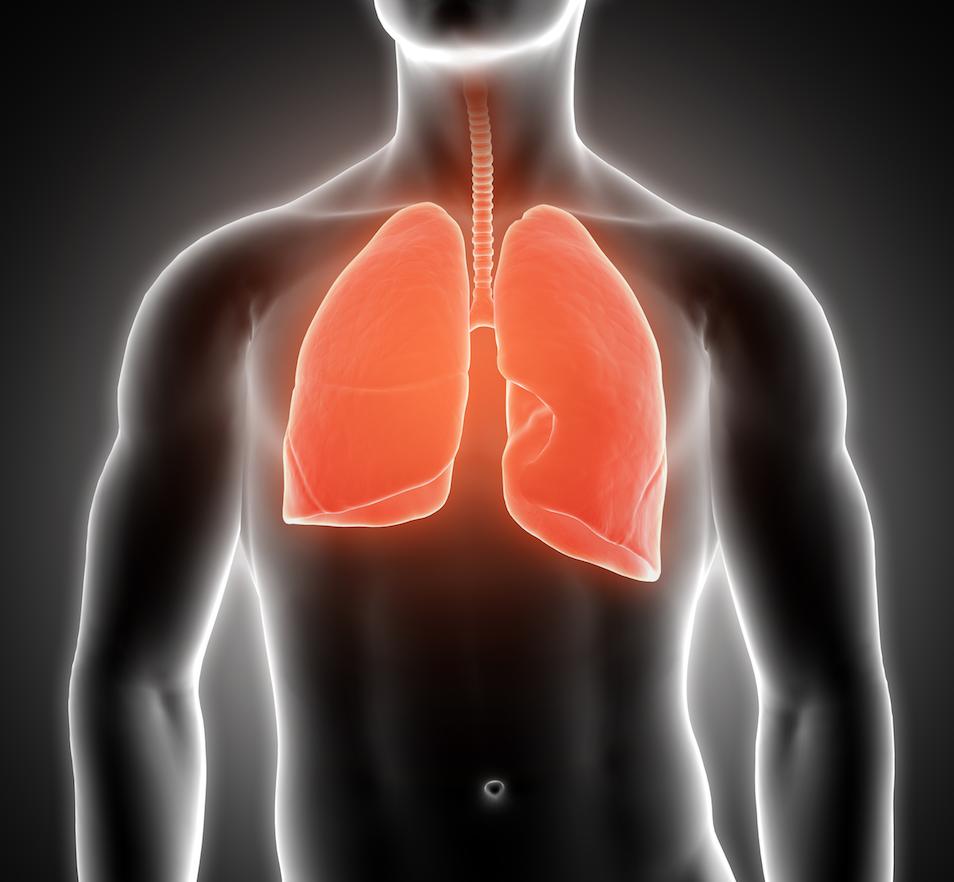 Selon un rapport publié dans la revue américaine Radiology, l'obésité, qui aggrave le Covid-19, peut entraîner des caillots sanguins mortels dans les poumons. Les chercheurs préconisent la détection précoce de l'embolie pulmonaire en réalisant une angiographie pulmonaire. La piste de l'anticoagulation est également ouverte...