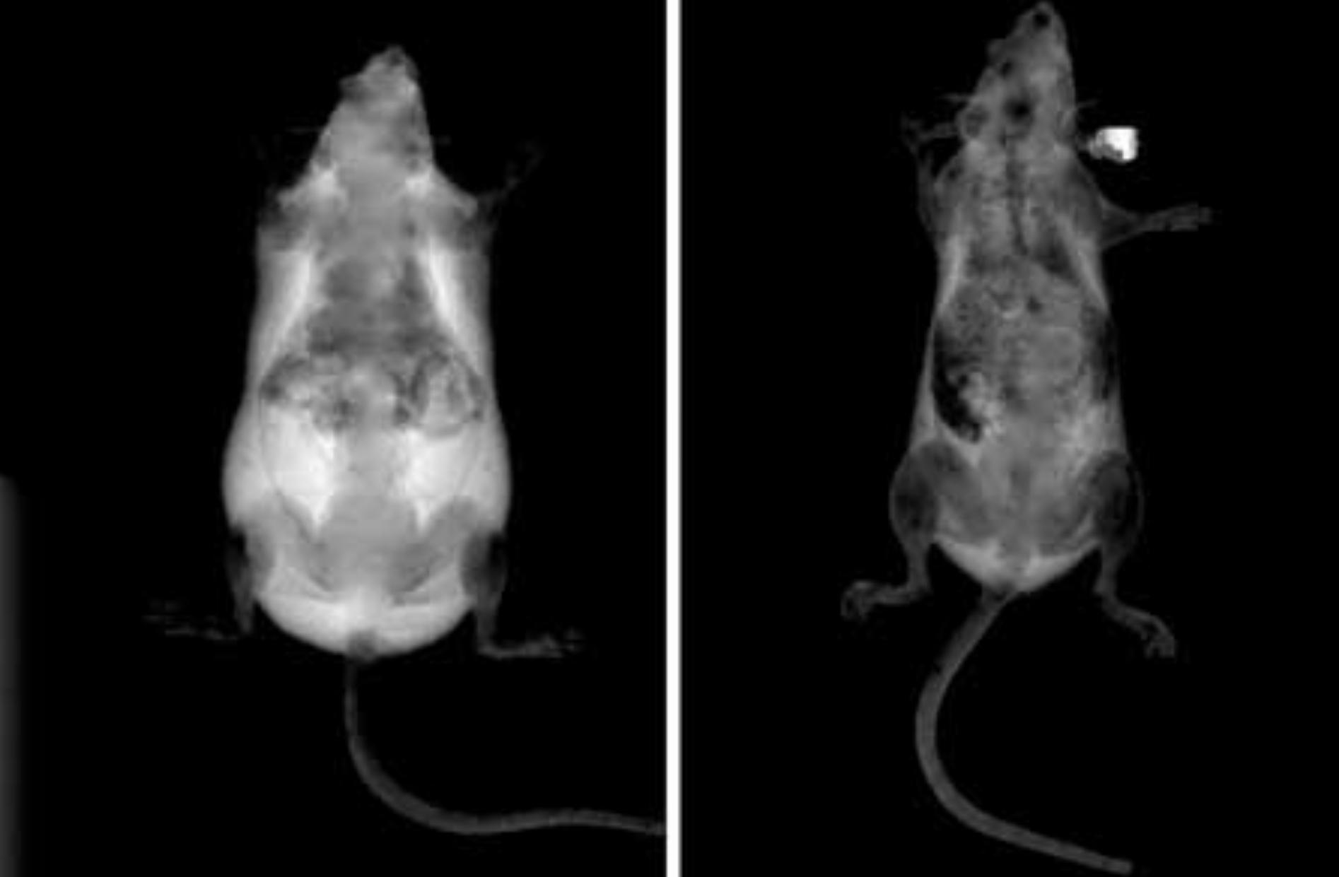 Des chercheurs de l'Université de médecine de Washington ont réussi à empêcher les souris de devenir obèses, même lorsqu'elles ont suivi un régime riche en graisses. La méthode des scientifiques : désactiver le gène ASXL2 dans des cellules inflammatoires.
