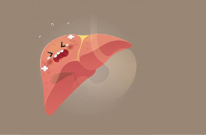 Une collaboration entre des chercheurs espagnols, français et allemands a permis d'identifier des biomarqueurs chez les patients souffrant d'obésité atteints par une inflammation du foie connue sous le nom de Nash. Ces caractéristiques biologique expliqueraient pourquoi ces personnes vulnérables ont un risque plus élevé en cas d'infection à la Covid-19.