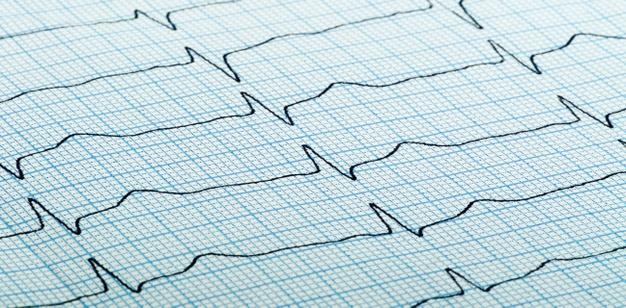 Des chercheurs suédois ont étudié le risque d'infarctus supplémentaires du myocarde et de décès précoce chez les patients gravement obèses qui subissent une chirurgie métabolique à la suite d'un événement myocardique. Les résultats sont encourageants.